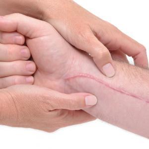 traitement naturel Cicatrisation