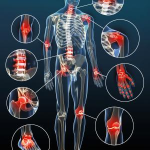 traitement naturel Inflammations, états inflammatoires chroniques