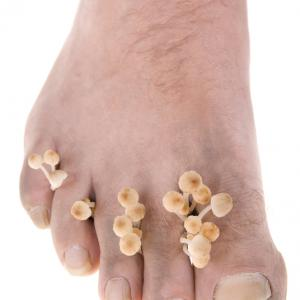 traitement naturel Mycose des pieds
