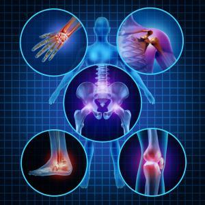 traitement naturel Ostéoporose