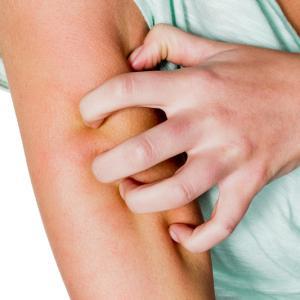 traitement naturel Allergies cutanées