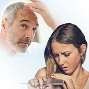traitement naturel Chute de cheveux