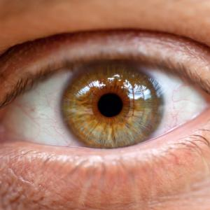 traitement naturel Glaucome et tension oculaire