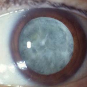 traitement naturel Cataracte